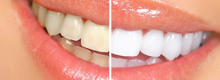 Will E cigarettes Stain Your Teeth