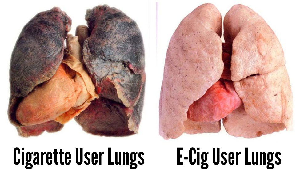 What Vaping Does to Your Lungs